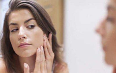 L'acné